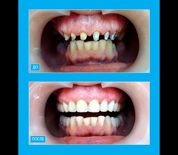 Цельнокерамические коронки Emax на зубах верхней челюсти и металлокерамические мосты на зубах нижней челюсти в боковых отделах.