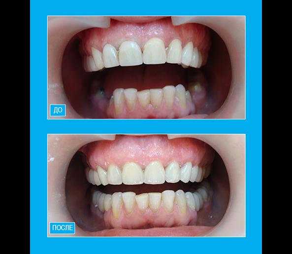 Покрытие зубов верхней челюсти керамическими винирами Emax. На нижней челюсти в боковых отделах - металлокерамические мостовидные протезы.
