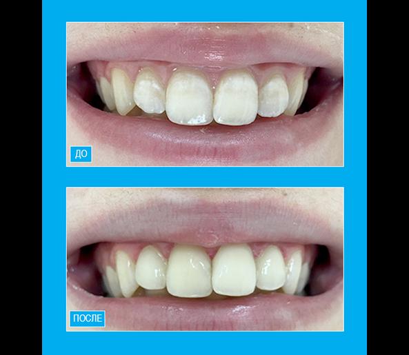 """Устранение меловидных пятен на четырех фронтальных зубах верхней челюсти с помощью композитного материала """"Enamel"""""""