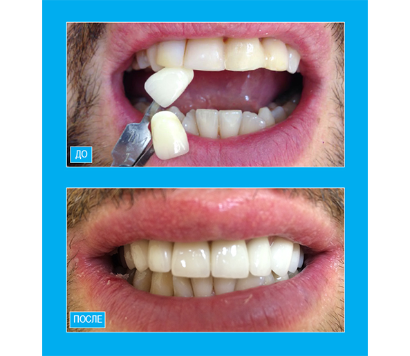 Протезирование зубов верхней челюсти цельнокерамическими коронками Emax