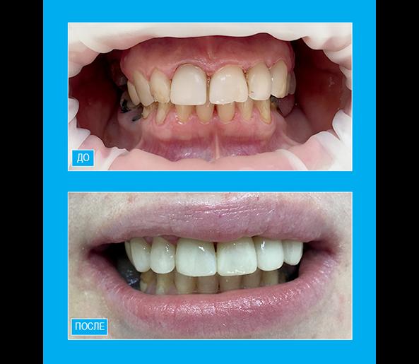 Покрытие зубов верхней челюсти винирами