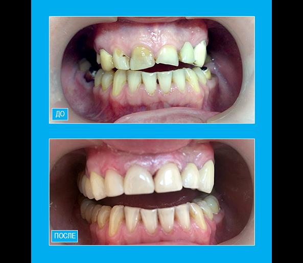 Профессиональная чистка  зубов.Реставрация шести фронтальных зубов композитом светового отверждения.