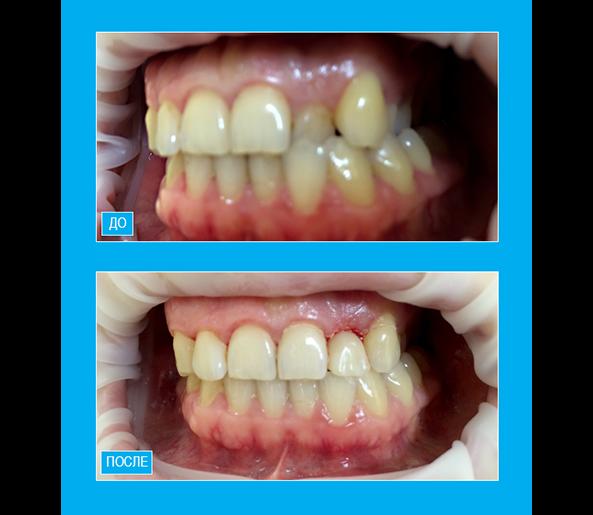 """Исправление позиции бокового резца верхней челюсти относительно зубной дуги путем художественной реставрации композитом """"Enamel"""""""