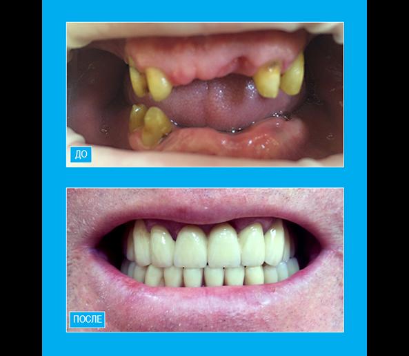 Протезирование зубов верхней и нижней челюсти металлокерамическими коронками и бюгельными протезами.
