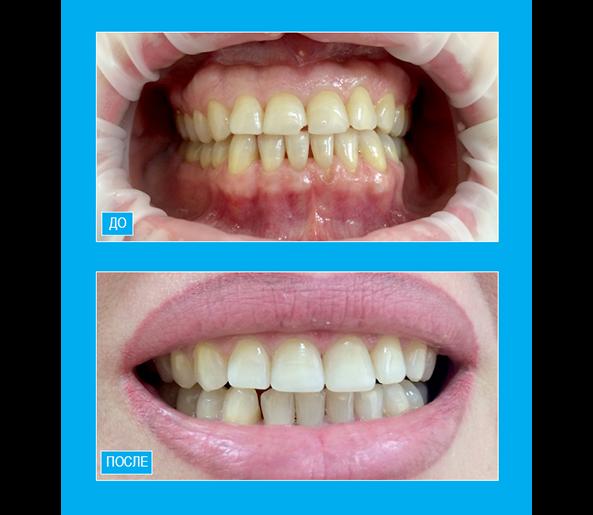 """Профессиональная чистка полости рта.Устранение скола центрального резца путем реставрации композитом  """"Enamel"""""""
