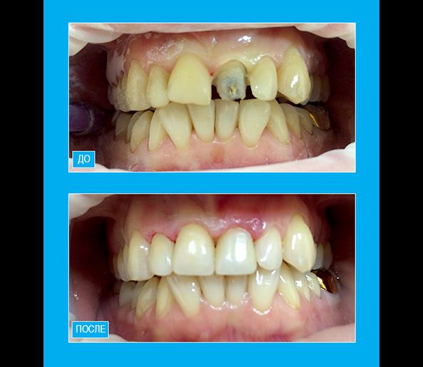 """Художественная реставрация четырех фронтальных зубов композитом """"Enamel"""""""